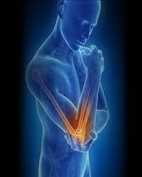 کاربرد آرنج بند