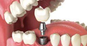 ویژگی ایمپلنت دندانی
