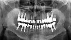 ایمپنت دندانی