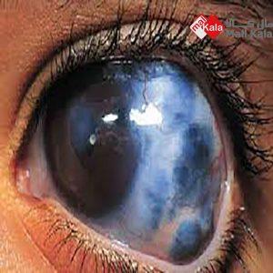 دلیل آب سیاه چشم
