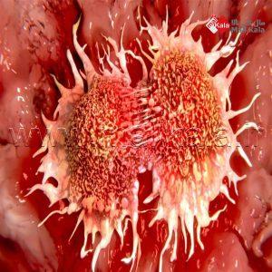 دلایل ایجاد سرطان